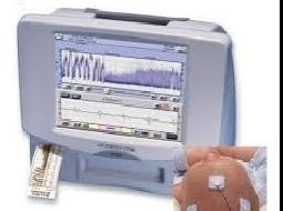 Monitor de función cerebral